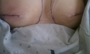 Results, approximately 24 hours post-op for prophylactic bilateral mastectomies with stage one reconstruction with expanders.