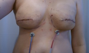 5 Days Post-op, prophylactic bilateral mastectomies and stage 1 of reconstruction.