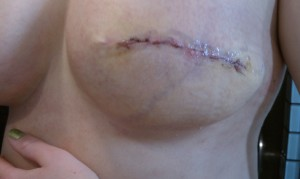 5 Days post implant reconstructive surgery