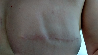 Breast impression, left breast